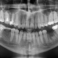 панорамный снимок зуба в Мед-Део