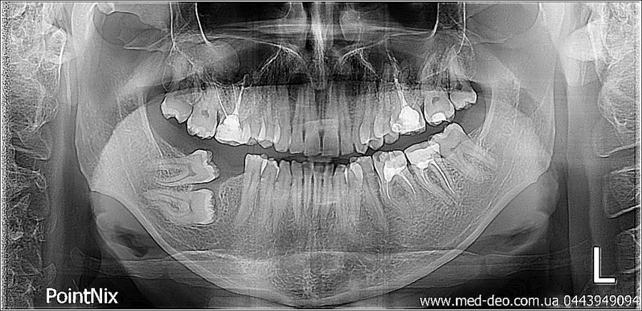 панорамный снимок зубов киев