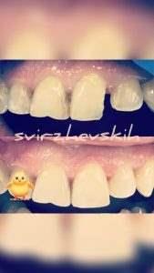 РЕставрация зубов фото 1