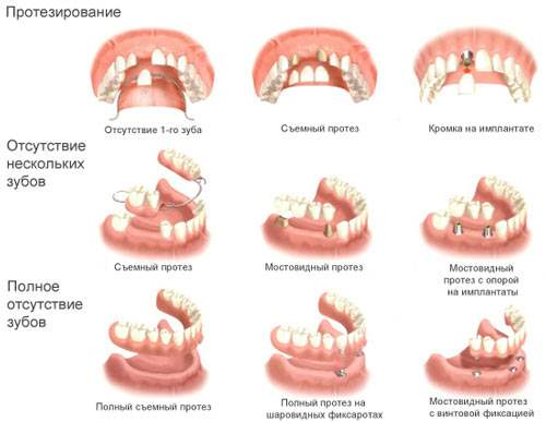вставить зубы на импланты