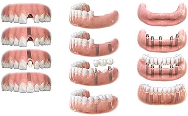 имплантаци язубов - протезирование зубов на имплантах
