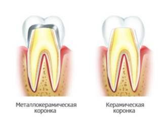 Зубные коронки - зубной протез