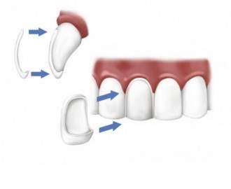 Виниры керамические - протезирование зубов