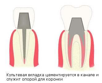 Кльтевая вкладка - протезирование зубов
