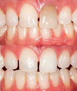 Внутриканальное отбеливане зубов