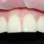 Типикин А.Ю. клинический случай №6 фото 2