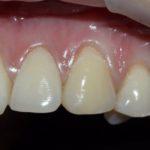 Типикин А.Ю. клинический случай №6 фото 3