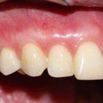 Типикин А.Ю. клинический случай №6 фото 4