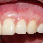 Типикин А.Ю. клинический случай №6 фото 6