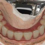 klinicheskij-sluchaj-3-foto-9