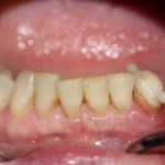 Мед-Део работы Типикина А.Ю. клинический случай 7 фото 10