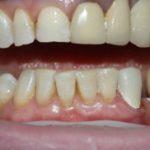 Мед-Део работы Типикина А.Ю. клинический случай 7 фото 18