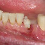 Мед-Део работы Типикина А.Ю. клинический случай 7 фото 5