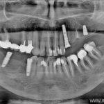Работы доктора Типикина в Мед-Део клинический случай 9 фото 1