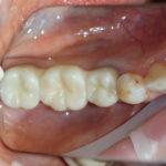 Работы доктора Типикина в Мед-Део клинический случай 9 фото 2