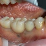 Работы доктора Типикина в Мед-Део клинический случай 9 фото 3