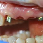 Работы доктора Типикина в Мед-Део клинический случай 9 фото 5