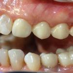 Работы доктора Типикина в Мед-Део клинический случай 9 фото 7