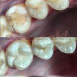 реставрация зубов Сверживским