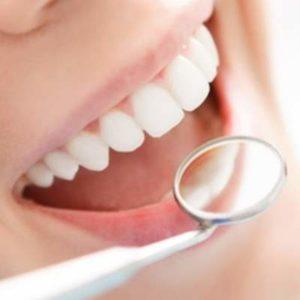 Акция отбеливание зубов фото 4
