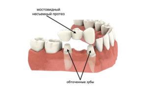 коронка на зуб фото 3