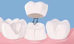 коронка на зуб фото 2