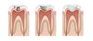 пломбирование зубов фото 1