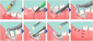 Удаление зуба мудрости фото 2