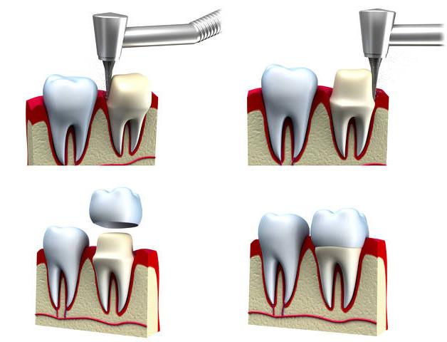 коронка на зуб фото 1