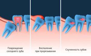 Удаление зуба мудрости фото 1