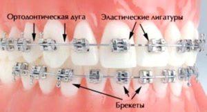 состав металлической брекет-системы