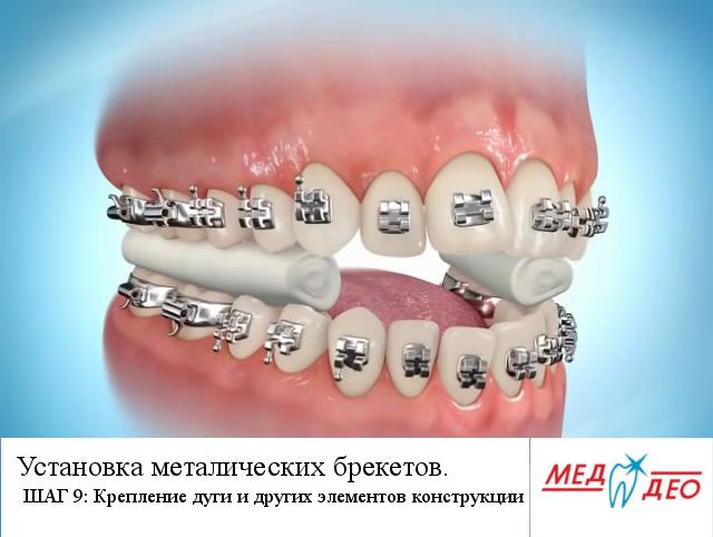 Установка брекетов металлических на все зубы