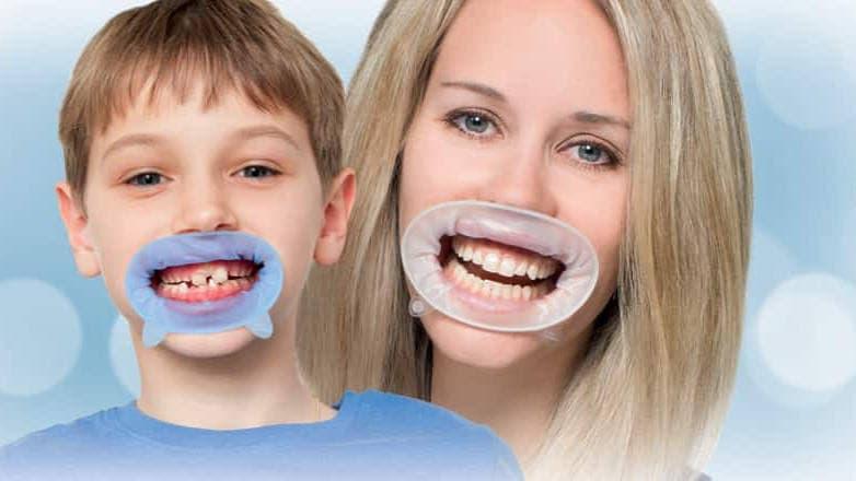 Профессиональная чистка зубов PROPHYpearls и защитой OptraGate