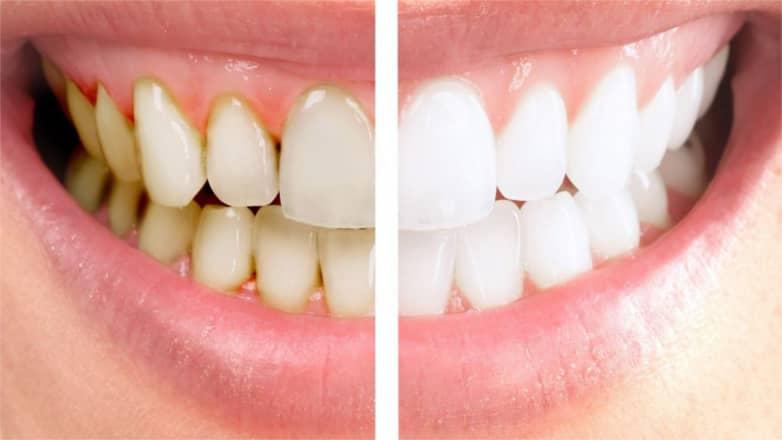 Профессиональная чистка зубов PROPHYpearls цена Киев 2
