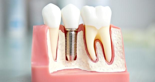 Что такое имплантация зубов фото
