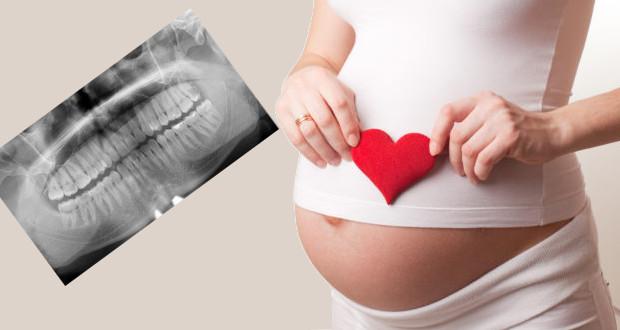 Можно ли делать рентген зуба при беременности фото