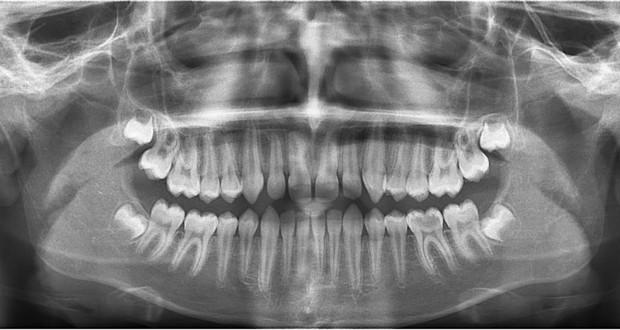 Сколько раз подряд можно делать рентген зуба фото