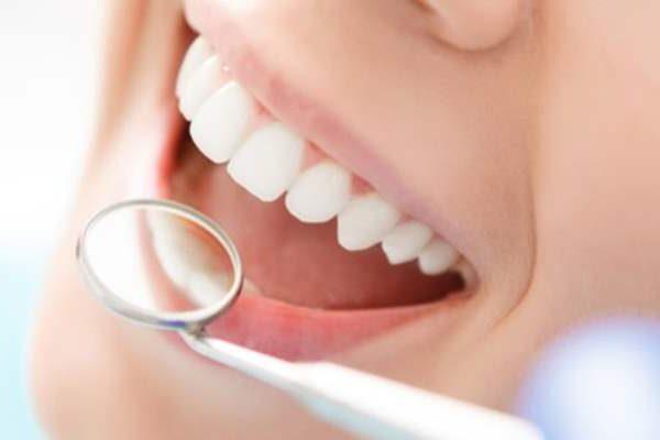 Профессиональная гигиеническая чистка полости рта - фото