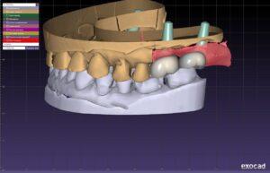 Імпланти MegaGen implant zubnoj