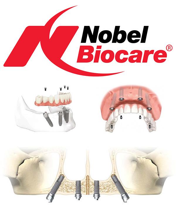 Импланты Nobel Biocare фото