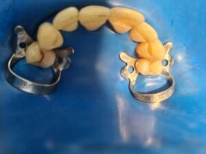 :этап шинирования зубов, изоляция коффердамом и отпрепарированная борозда, где будет размещаться стекловолоконная шина