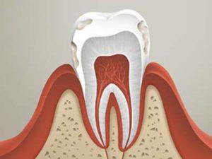 Флюороз зубов: лечение a