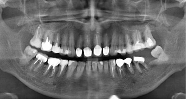 Как расшифровать рентген зуба фото