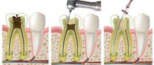Удаление нерва зуба фото