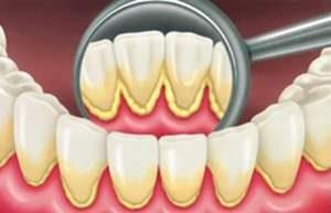 Пародонтит zubnoj kamen