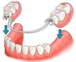 Протезирование зубов фото 4