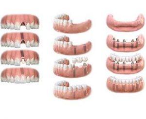 Ортопедическая стоматология фото 1