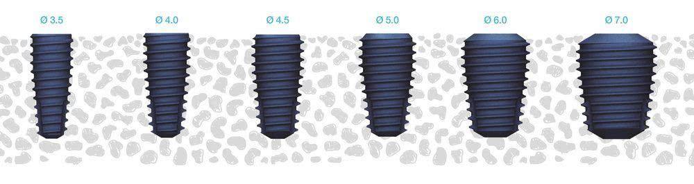 Зубні імпланти MegaGen AnyOne: повний огляд anyone implant overview