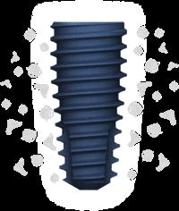 Зубні імпланти MegaGen AnyOne: повний огляд bitmap 7