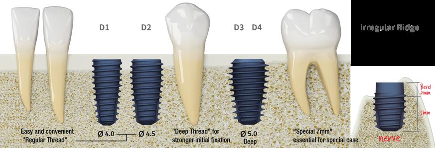 Зубні імпланти MegaGen AnyOne: повний огляд group 1